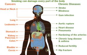 smoking can damage